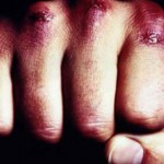Potukla se dvojica Vodičana, 49-godišnjak teško ozlijeđen