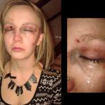 POMOZITE! Očajnički poziv mlade djevojke Vladi nakon brutalnog napada na dvije cure